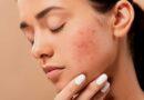 Eliminar el Acné y las Cicatrices del Rostro - Belleza y Salud - Rostro y Piel - Los Secretos de Dorian: El Magazine de la Eterna Juventud